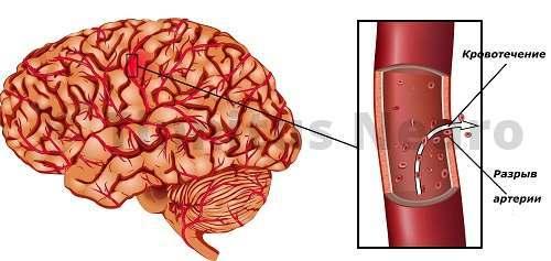 Геморрагический инсульт - последствие аневризмы