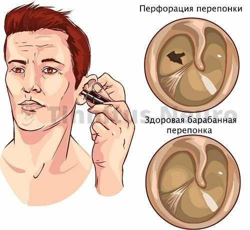 Воспаление уха приводит к перфорации барабанной перепонки