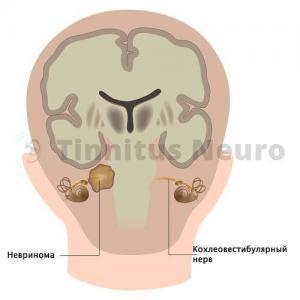 Невринома редкая опухоль, поражает слух и равновесие