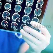 Чтоб установить истинную причину сильного шума в голове и ушах, требуется разностороннее обследование