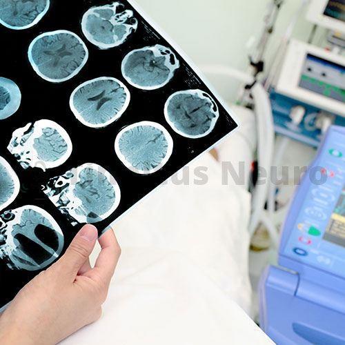 Рентген после удара по голове покажет, все ли кости целы