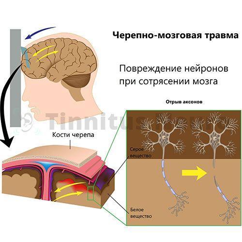 Шум в ушах после травмы головы возникает из-за сотрясения вещества мозга