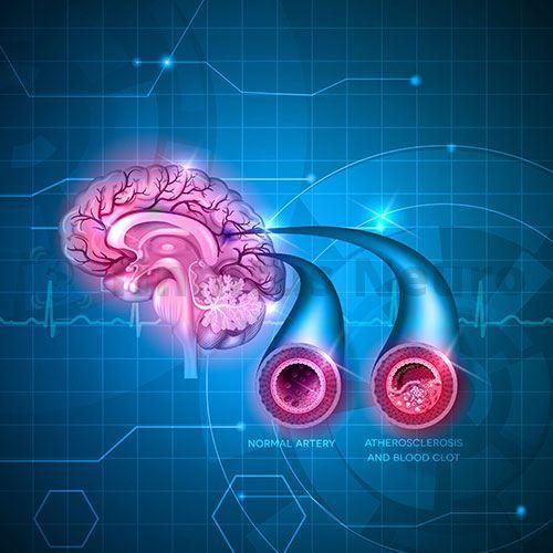 Атеросклероз перекрывает артерию постепенно
