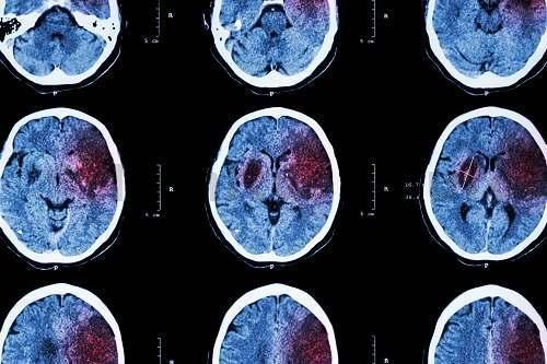 Современные диагностические методики позволяют найти сосудистую причину свиста и шума