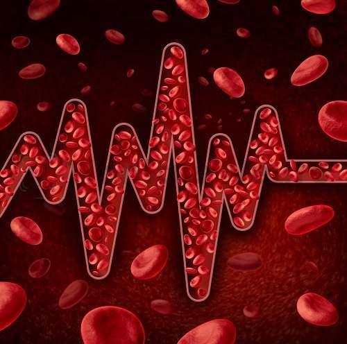 Пульсирующий шум возникает от движения крови по сосудам