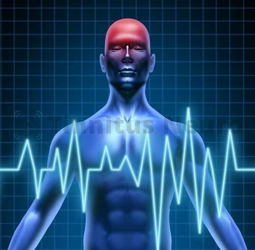 Скачки давления проявляют себя приступами шума в голове