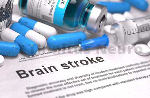 Квалифицированное лечение шума и свиста в голове, служит профилактикой инсульта