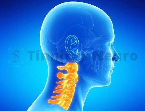 Патология шейных позвонков нередко приводит к шуму и гулу в голове