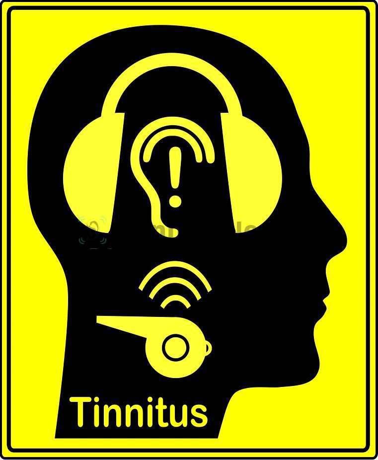 Причинами звона в голове и ушах становятся разные состояния