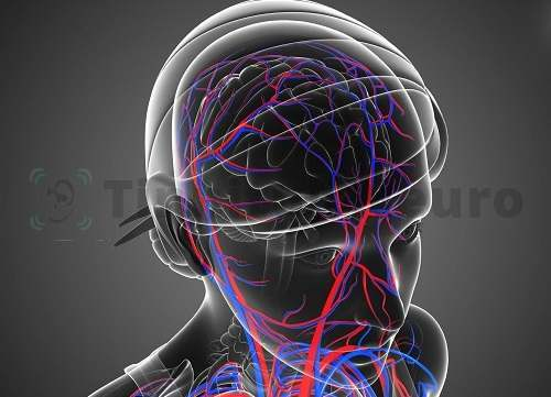 Сосудистые расстройства – частая причина шума в левом ухе