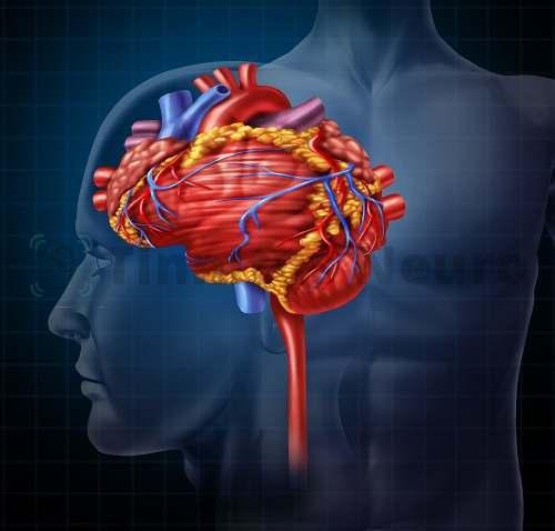 Расстройства сердечно-сосудистой системы часто вызывают шум в голове