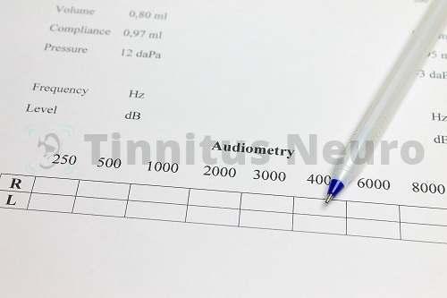 Шум в ушах и слабый слух - показания дя проведения аудиометрии