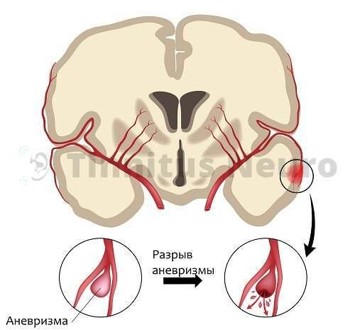 Признаки инсульта могут развиваться из-за осложненных аневризм