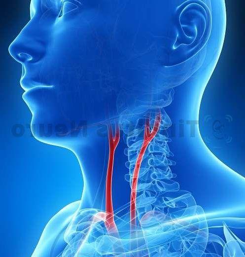 Шум в одном или обоих ушах часто возникает при стенозе сонных артерий.