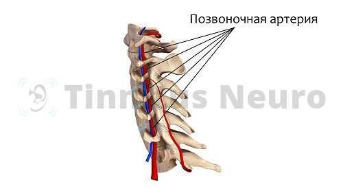Нестабильность шейного отдела - причина сужения просвета позвоночной артерии