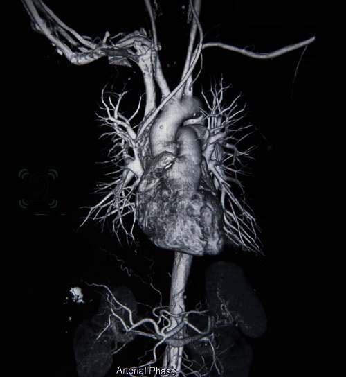 Артериальная сеть и участки стенозов хорошо видны на МРТ