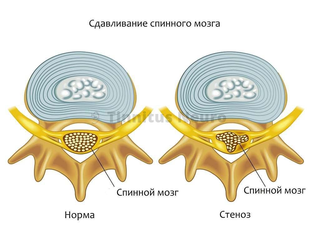 При нестабильности позвоночника, вещество спинного мозга деформируется