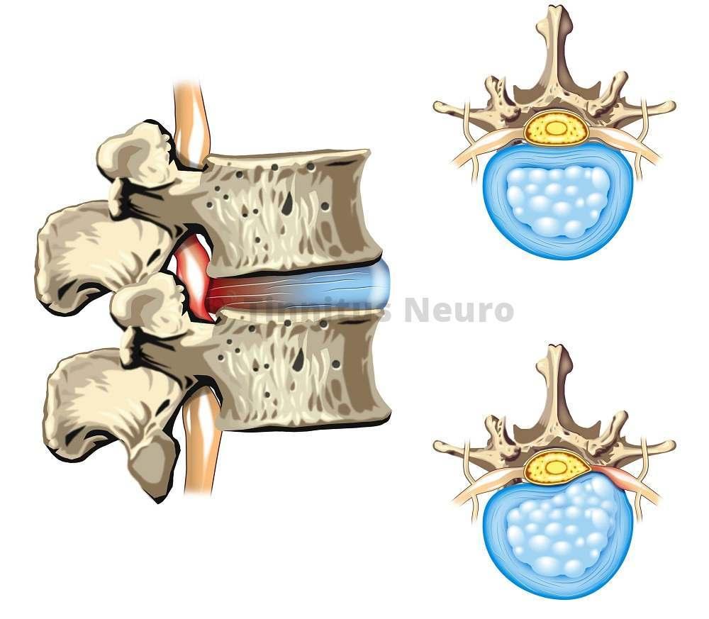 Спинномозговая грыжа развивается при неправильном лечении нестабильности позвоночника