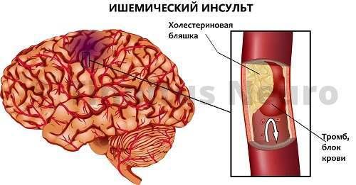 Инсульт развивается из-за тромбоза сосудов на фоне атеросклероза