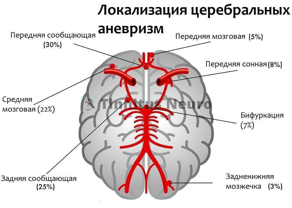 Механизм развития мозговых аневризм таков же, как и сонных
