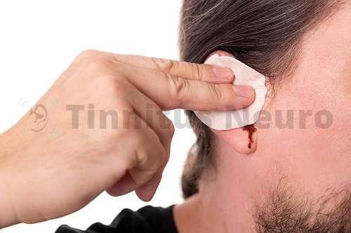 Сильный шум в больном ухе