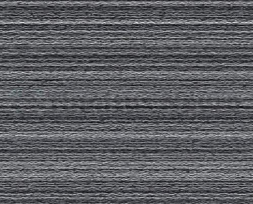 Звуковые волны на аудиограмме характеризуют шум в ушах