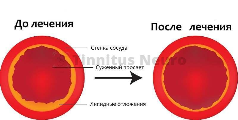 Восстановить нормальное кровоснабжение мозга можно только при квалифицированном лечении атеросклероза
