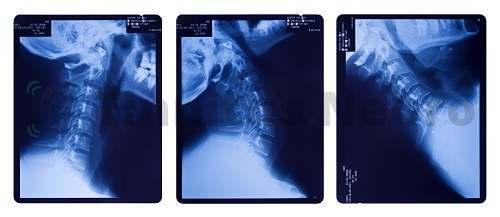 Массаж шеи улучшает кровообращение в мозгу при тиннитусе