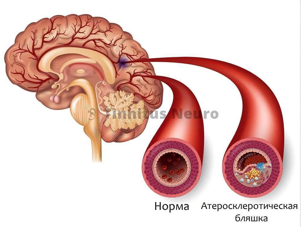 Без лечения атеросклероза иногда невозможно помочь пациентам с шумом в ушах