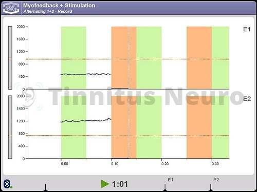 Биологическая обратная связь и шум в ушах - эффективное лечение тиннитуса