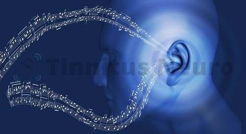 Мелодичные звуки - часть акустической терапии шума тиннитуса