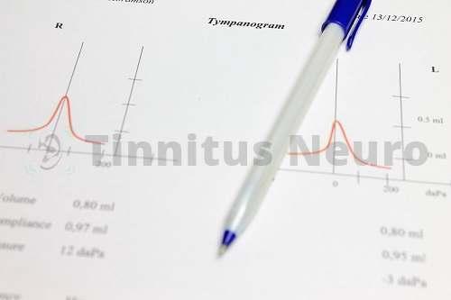 С помощью аудиометрии выясняются детальные характеристики тиннитуса и его причины