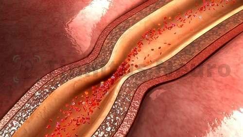 Шум пульсации появляется при спазме или стенозе артерий