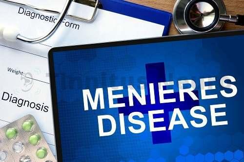 Профессиональное лечение болезни Меньера