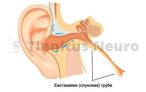 Тиннитус появляется из-за перекрытия трубы
