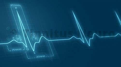 Изменения работы сердца отражаются на ЭКГ
