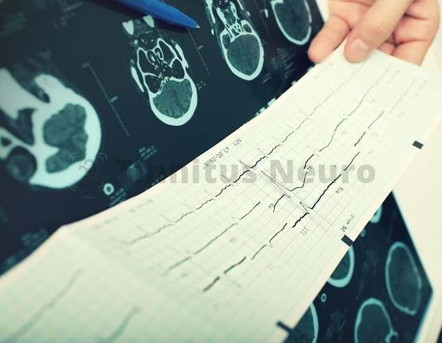 Инструментальные методы (ЭКГ, КТ и МРТ) подтверждают данные допплерографии