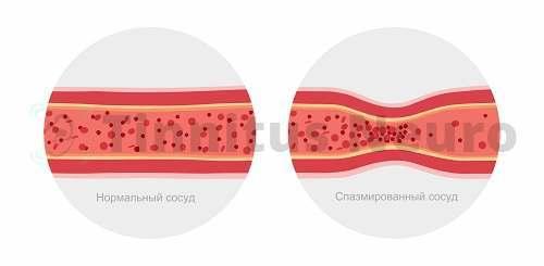 Сосудистый стеноз меняет скорость кровотока