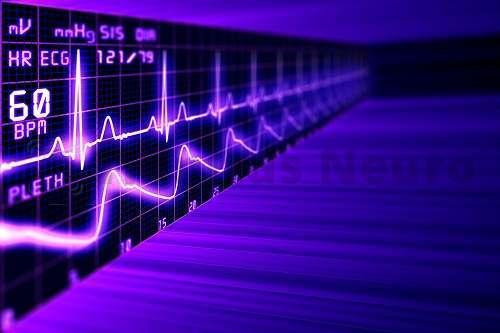 Одновременная регистрация нескольких параметров сердечной деятельности