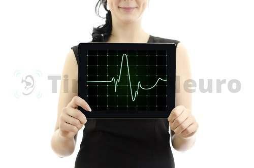 Холтеровская ЭКГ пишет циклы сердца сутки и более