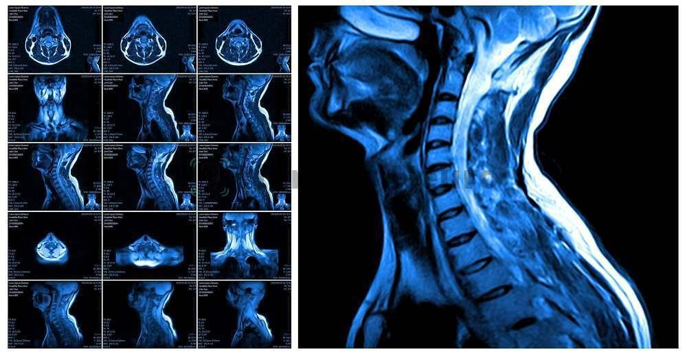 Шейный отдел позвоночника на МРТ в 3 проекциях