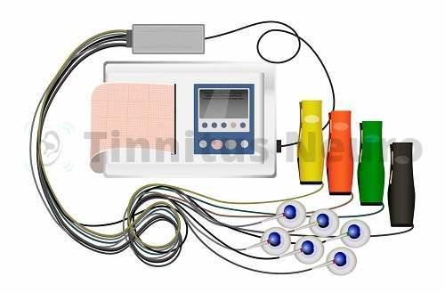 Аппарат для записи ЭКГ в нескольких отведениях