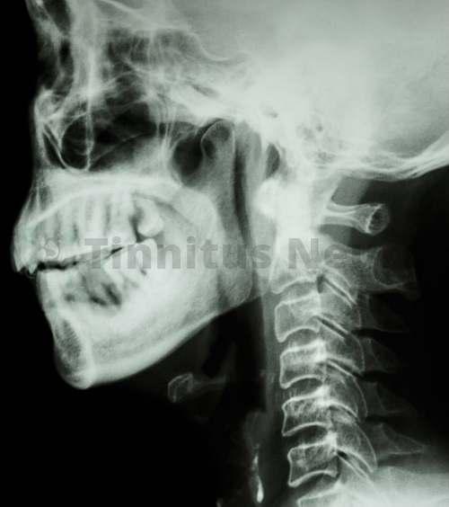 Рентген не способен показать некоторые моменты
