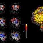 Диагностика причин шума в ушах по активности мозга