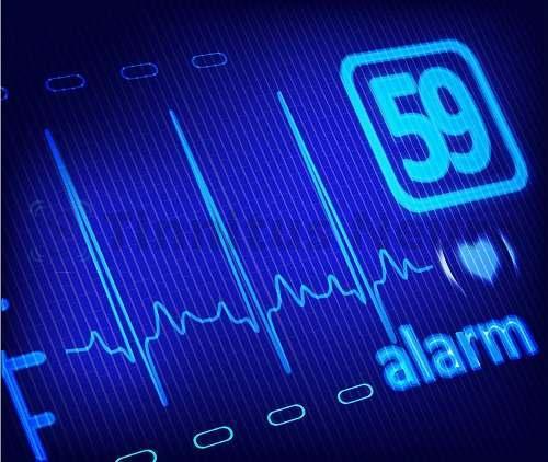 Цифровая запись кардиограммы