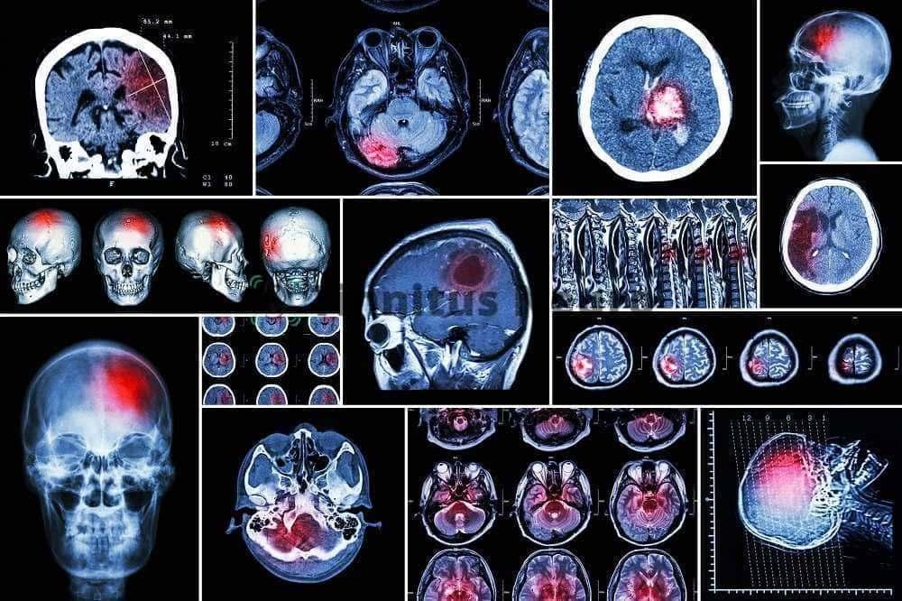 МРТ головы показывает причину шума в ушах