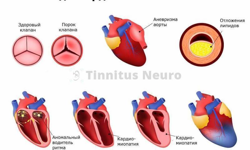 Расшифровка ЭКГ выявляет ранние стадии болезней сердца
