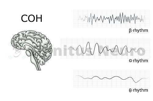 Импульсы мозговой активности