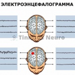 Запись ЭЭГ - норма и патология