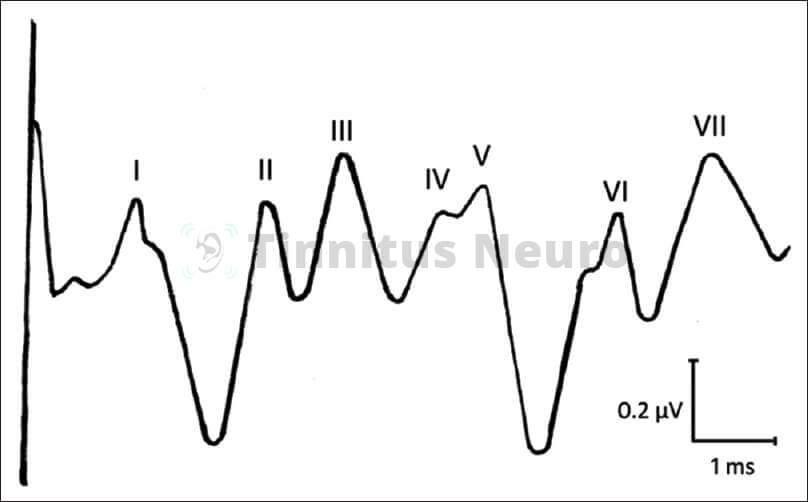Вызванные потенциалы - график, расшифровка